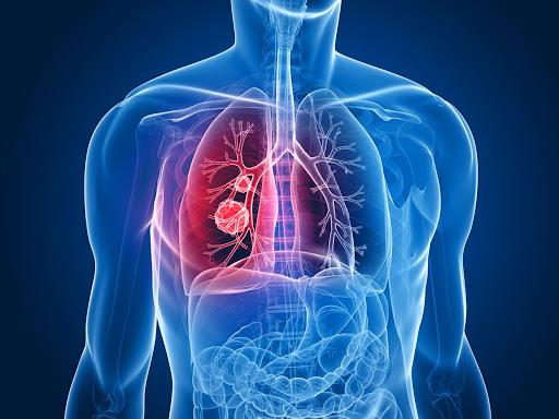 عفونت دستگاه تنفسی تحتانی عفونت دستگاه تنفسی تحتانی ofonat tanafosi